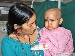 2 Years Old Pushpadhami Needs Your Help Fight Acute Lymphoblastic Leukemia (All)
