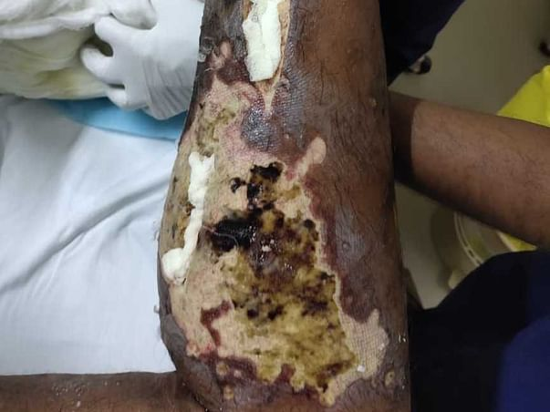 Support Karthik  Recover From Cellulitis