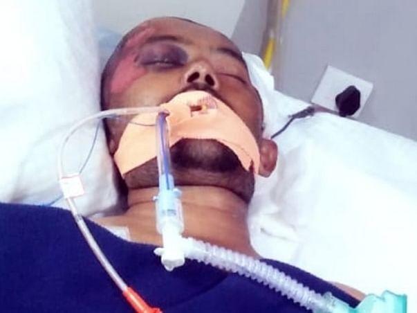 Support Sunil Kumar To Recover From Accident Injuries