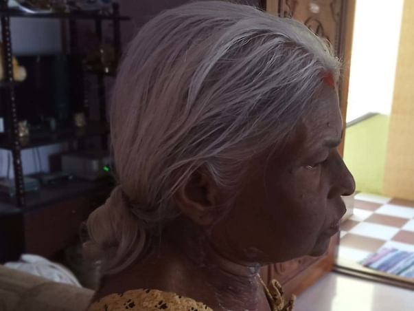 My Mother Is Struggling With Kidney Failure, Help Her