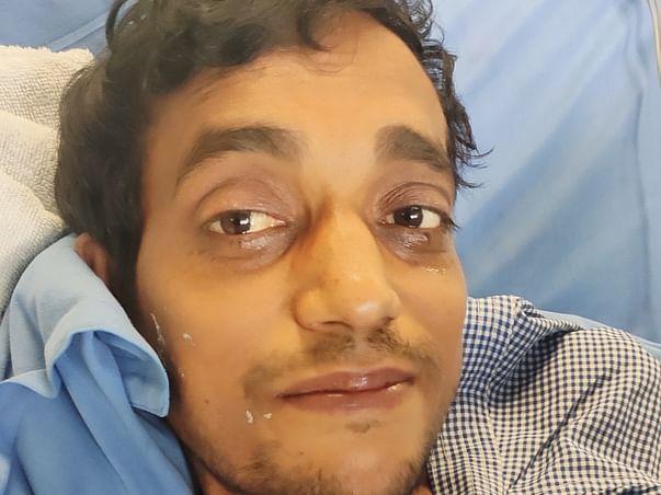 31 Years Old Chetan Kumar Needs Your Help Fight Liver Failure