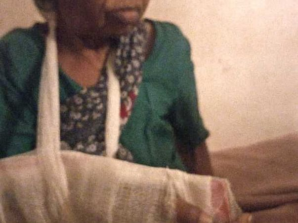 Help Balamma, 80, a destitute, cover surgery costs for  fractures
