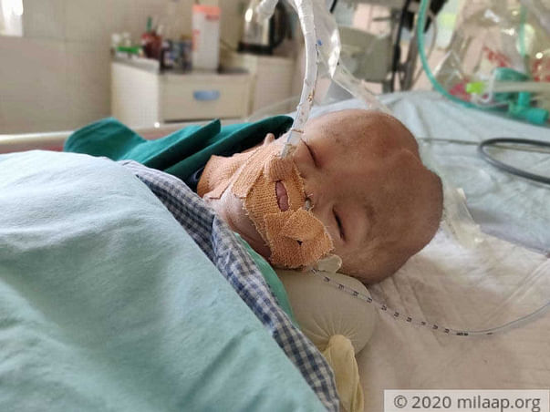 Born With A Head Twice The Size Of Normal, This Baby Is Critical