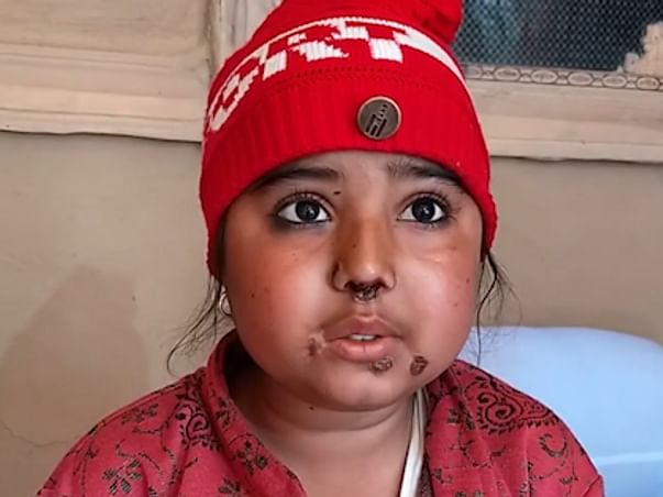 Rare Disease Leaves 13yr-Old Girl's Face Covered In Painful Blisters