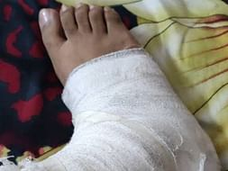 Support Sreeja Recover From Leg Injury
