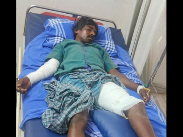 Please help Ramkumar to recover from severe Burns and spinal injury