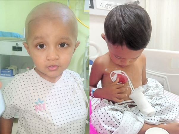 Support 2 Years old baby is suffering from rare Thalassemia major.