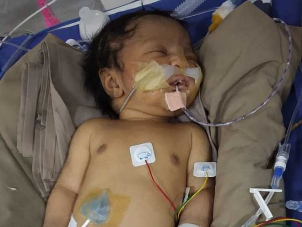 4 Days Baby Of Ishrath Banu Needs Your Help Fight Neuropathic Problems
