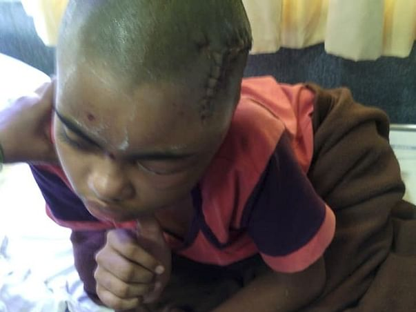 ASSIT A HELPLESS PRIVATE TEACHER SAVE HIS DAUGHTER FROM EPILEPSY