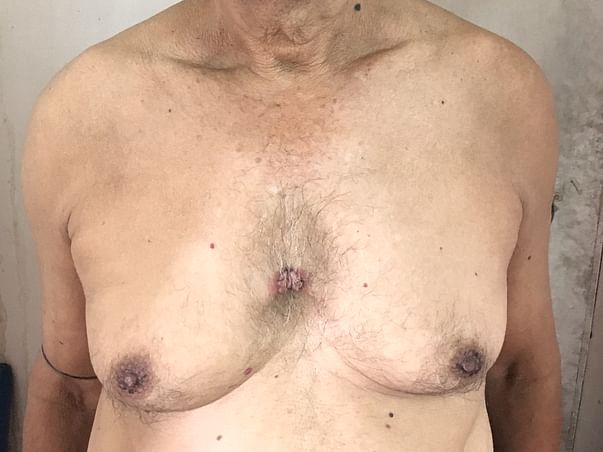 My Father Is Struggling With Skin Infections, Help Him