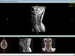 I'm Struggling With Spinal stenosis,Help Me
