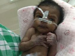 22 Days Old Baby Of Mangalselvi Needs Your Help Fight Cardiac Problem