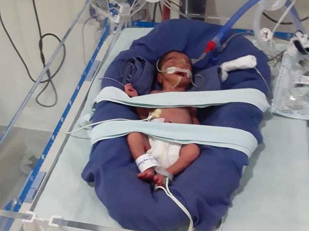 1 Month Old Baby Of Sarasvati Needs Your Help