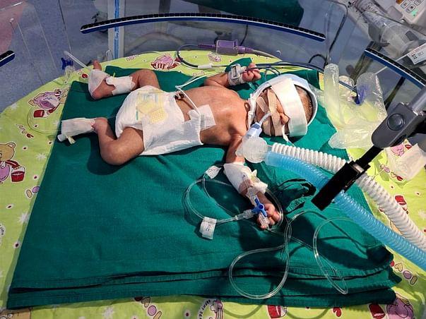 Help Baby of Pinki receive NICU care