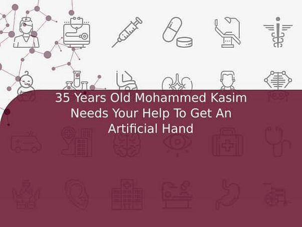 35 Years Old Mohammed Kasim Needs Your Help To Get An Artificial Hand