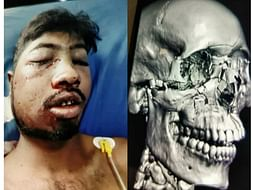 Help praveen save his life.... Major damage in right part of the skull