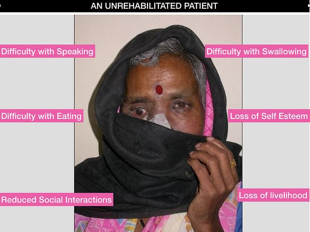 Head And Neck Cancer Patients need Rehabilitation