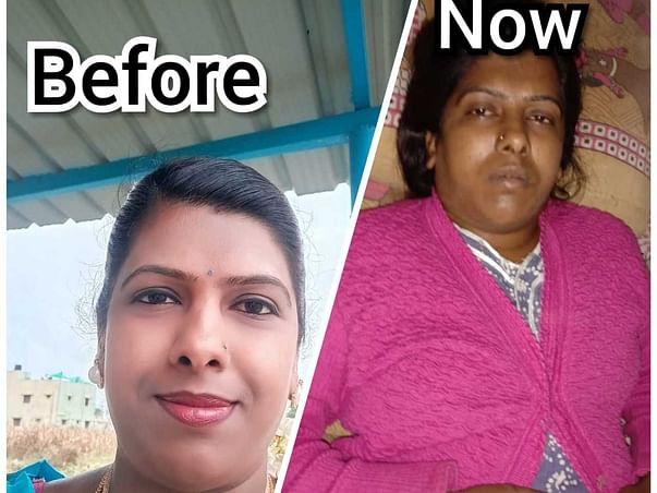 Smitha Needs Your Help Fight Lower Respiratory Tract Infection