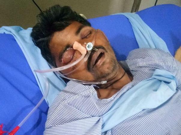 My Friend Veersinghgurgar Is Struggling With Accident, Help Him