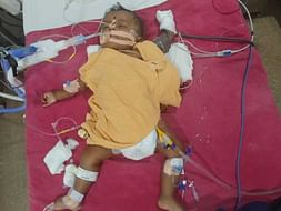Help B/o Rekha and Prasad K 5 month old Son to fight with cancer.