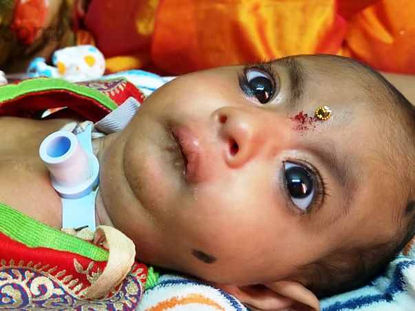 Food Stall Vendor Needs Your Help To Save His Baby's Life