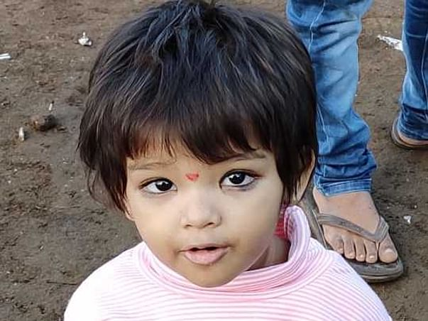2 Years Old Rashi Needs Your Help Recover Hydrocephalus