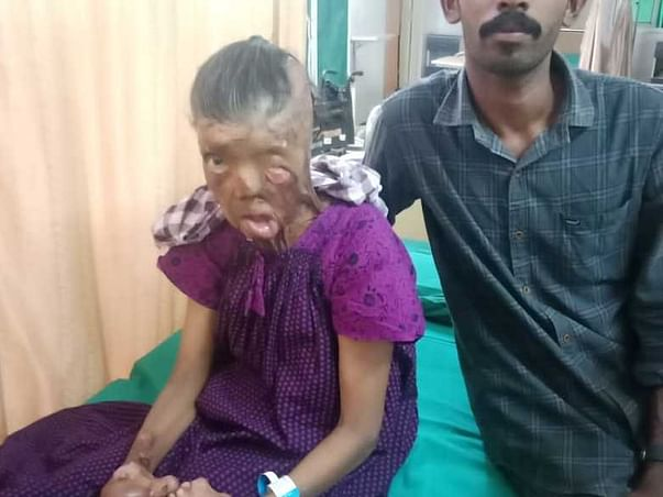 53 Years Old Ushakumari R Needs Your Help Recover Body Burn