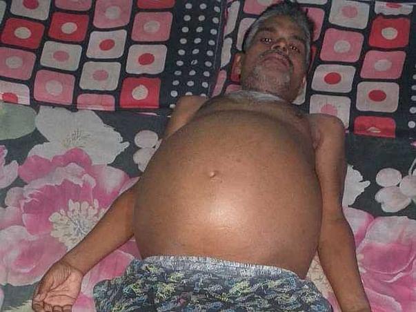 Help Shanker Prasad Tamoli Survive Liver Failure