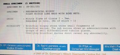 Bronchial Biopsy Report