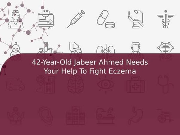 42-Year-Old Jabeer Ahmed Needs Your Help To Fight Eczema