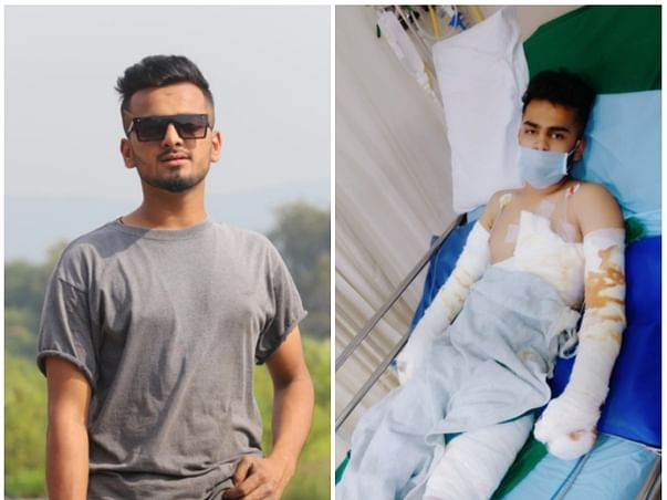 This 20 years old needs your urgent support in fighting Electric burn