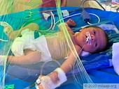 This Newborn Girl Is Struggling To Survive, And Her Father Can't Be With Her