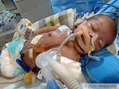 The Large Scar On This Newborn's Chest Tells The Painful Story Of His Fight To Survive