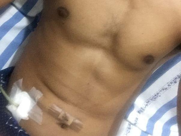 Support Sane Soma Shekar Recover From Appendicitis