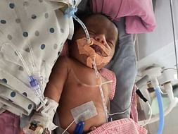 5 Days Old Baby Of Sai Krupa Needs Your Help Fight Polyhydramnios
