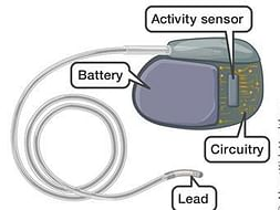 Help heart patients by providing pacemakers for them