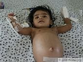 6-Month-Old With Painfully Swollen Stomach Needs Urgent Liver Transplant