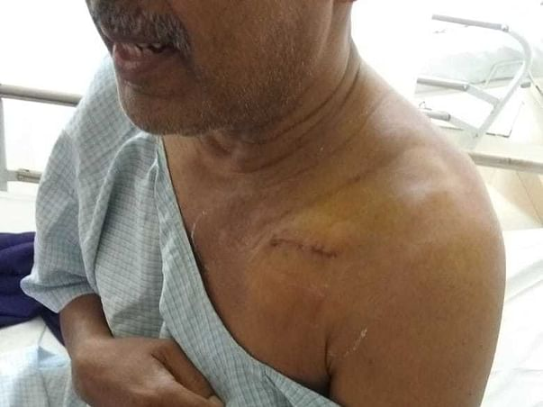 Support Vungarala Govinda Rao Recover From Heart Disease
