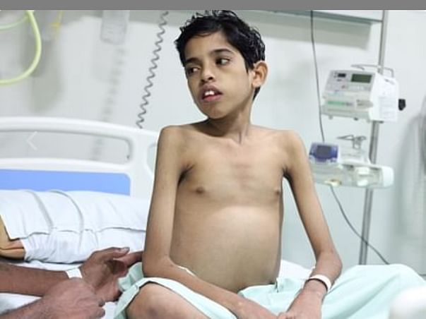 Help Dilliganesh for liver inflammation