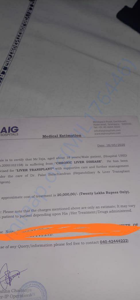 Estimation letter for liver transplantion