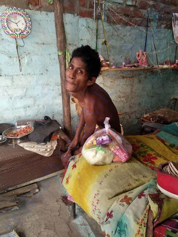 Bhopal Gas Victim children
