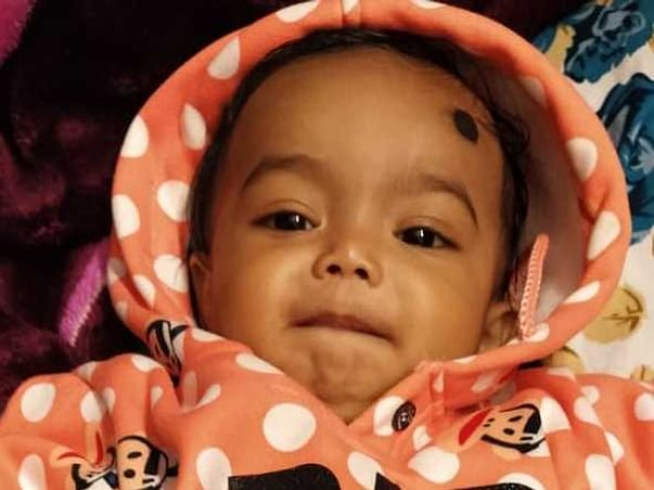 She Spent Her 1st Birthday In Pain Because Of A Dangerous Disease