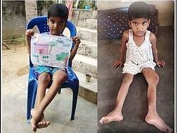 6 Years Old Geethika Saranya Needs Your Help Fight Bone Neoplasm