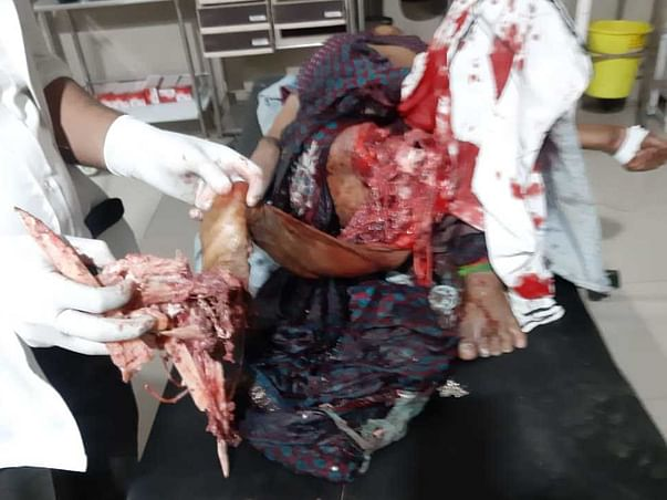 Help Bithla Devi Undergo Operation