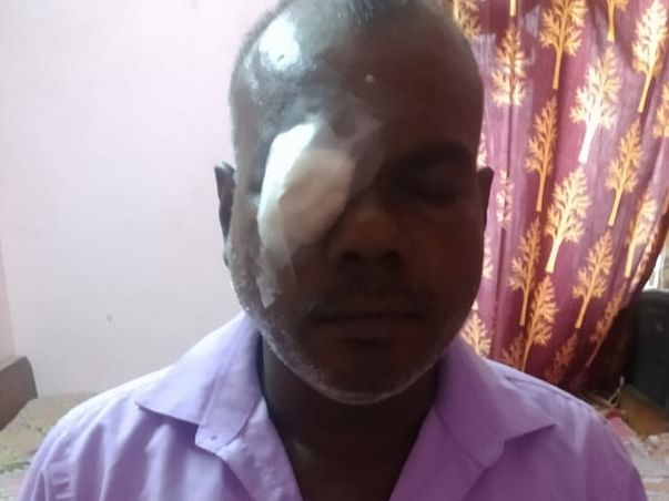 This 48 Years Old Needs Your Urgent Support In Fighting Eye Surgery On Both Eyes