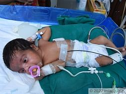 My 1 month old baby is in the ICU and need your support to survive