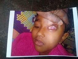 8 years old Shajidha needs your help fight Acute Myeloid Leukemia