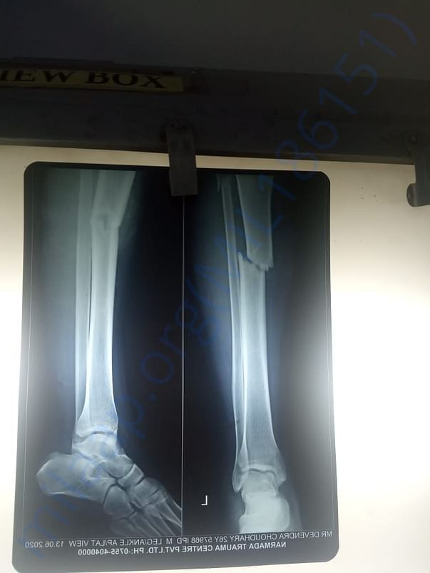 X ray for leg