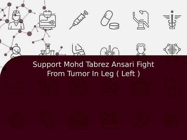 Support Mohd Tabrez Ansari Fight From Tumor In Leg ( Left )