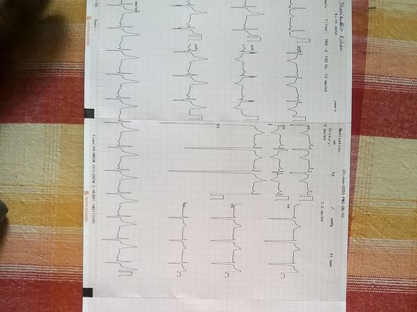 13 Years Old Mohammed Shariquddin Needs Your Help. Fight Heart Failure
